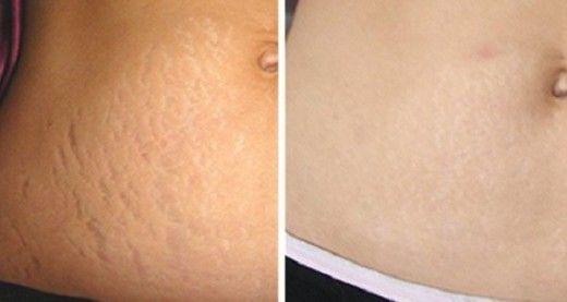 Les vergetures sont des lésions qui apparaissent sur la peau, notamment au niveau de l'abdomen, des hanches et des seins, en général après une brusque prise de poids ou une grossesse. Elles sont d'abord de couleur violette, avant de s'estomper avec le temps pour devenir des lignes blanchâtres disgracieuses. Voici comment vous en débarrasser en 6 semaines.