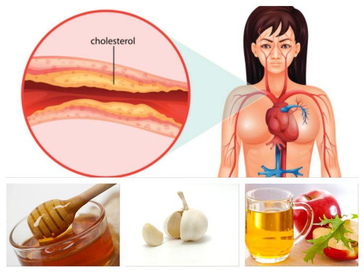 Jūs netikite šio recepto efektyvumu? Tiesiog išbandykite jį! 100% natūralus! Didelis blogojo cholesterolio kiekis ir aukštas kraujo spaudimas gali sukelti rimtų sveikatos problemų, bei žymiai sumažinti gyvenimo kokybę. Šis tradicinis liaudies vaistas...