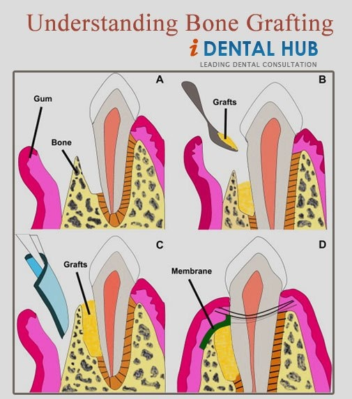 Bone grafting is a surgical procedure in which artificial material or a patient's own bone is used to fill the defects in the bone.