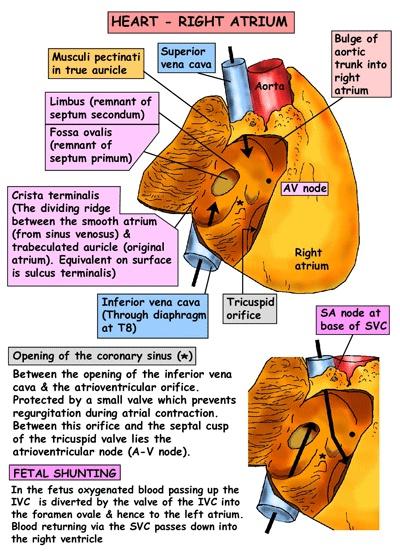 Cardiac - RA