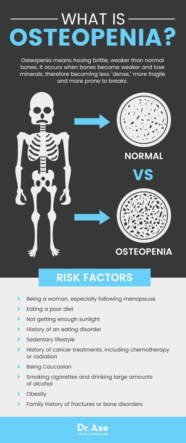 38++ The most significant dietary factor contributing to osteoporosis is info