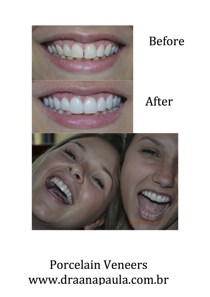 perfect smile veneers форум