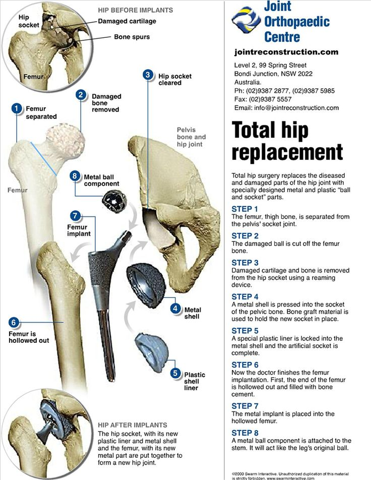 284 best hip images on Pinterest | Hip replacement, Surgery and ...