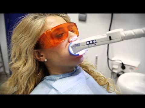 CASO REAL DE BLANQUEAMIENTO DENTAL QUICKWHITE - YouTube