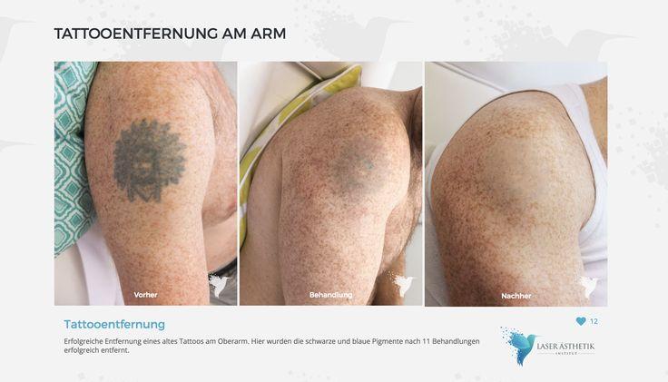 Jugendsünde?  Ja... nicht immer das erste Tattoo möchtet Ihr für ewig behalten 🎯 Hier sehr gutes Ergebnis mit unserem Kunde aus Recklinghausen.  Nach 11 Behandlungen erfolgreich entfernt.   💥Laserbehandlung bei LASER ÄSTHETIK INSTITUT💥 buche deinen#Terminonline:  🌍Website:www.laser-aesthetik-institut.de?utm_content=buffer66b1a&utm_medium=social&utm_source=pinterest.com&utm_campaign=buffer ⏰Phone: 0201779221 & 021191187466 📍Location: Essen + Düsseldorf…