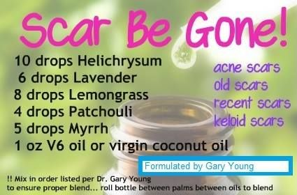 Here is the Scar B Gone formula developed by Gary Young.