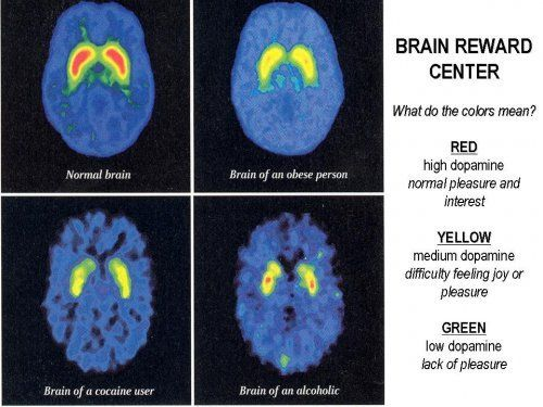 decision making in an addicted brain essay This is because we bring into our decision-making process flaws and errors of our own  with brain switched on and eyes wide open,.