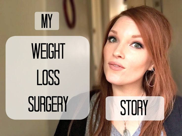 My Weight Loss Surgery Story - VSG 3 years post gastric sleeve surgery