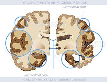 Áreas  cerebrales afectadas por Alzheimer.  La corteza se contrae y daña las áreas del cerebro utilizadas para pensar, planear y ...