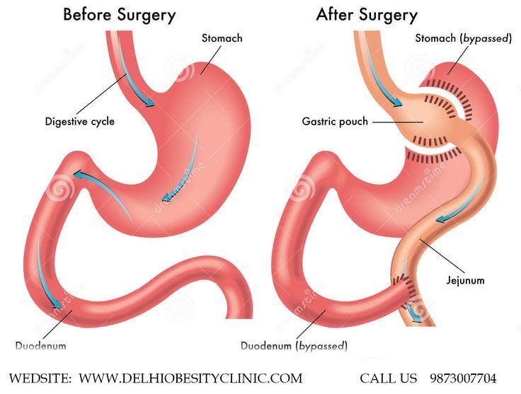 85 best laparoscopic sleeve gastrectomy surgery images on, Skeleton