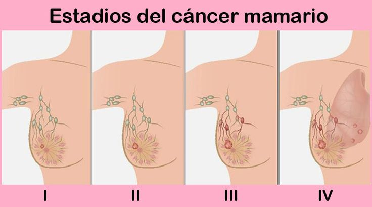 Cáncer de mama que reaparece tiene componente genético | Por: @linternista - http://medicinapreventiva.info/ciencia-y-tecnologia/22456/cancer-de-mama-que-reaparece-tiene-componente-genetico-por-linternista/ - A pesar que la mayoría de las mujeres con cáncer de mama se curan tras recibir tratamiento, en una de cada cinco de ellas reaparece, de la misma manera que el anterior o extiende a otras partes del cuerpo haciendo metástasis.  Pero, ahora las mujeres podrían dispon