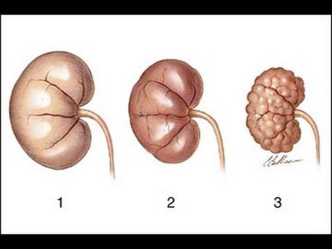 Symptoms of Kidney Disease & Renal Failure - How To Treat Kidney Disease and Natural Remedies - YouTube