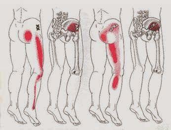 Tensor Fasciae Latae Pain Symptoms, Causes and Treatment | New Health Advisor
