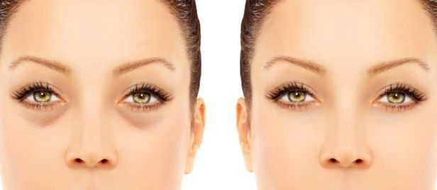 How to reduce puffy eyes quickly? Home remedies for puffy eyes treatment. Get rid of puffy eyes fast and naturally. Avoid puffy eyes. Cure puffy eyes. #cureforbagsundereyes