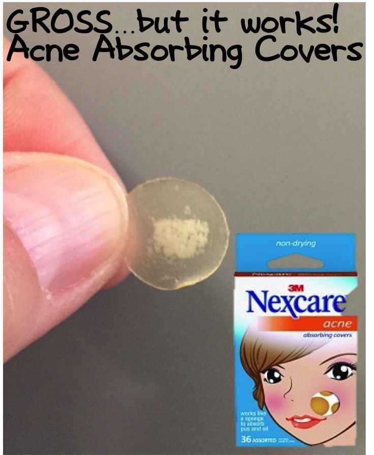 Don't let a loud, obnoxious pimple ruin your day. Nexcare Acne Absorbing Covers work like sponges to absorb pore-clogging pus and oil. They also act as protective covers, keeping dirt out and reducing the urge to squeeze. Simply apply a Nexcare Acne Cover to a blemish and change it daily.