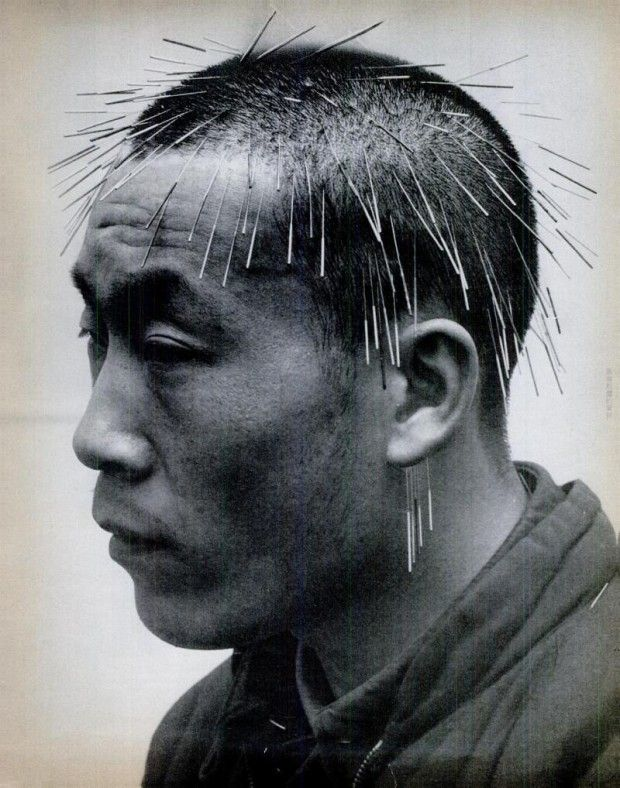Acupuncture Treatment in Taiwan 1971