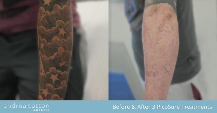Lower arm tattoo before and after three PicoSure laser treatments. #tattooremoval #tattoos #inked #tattooregret
