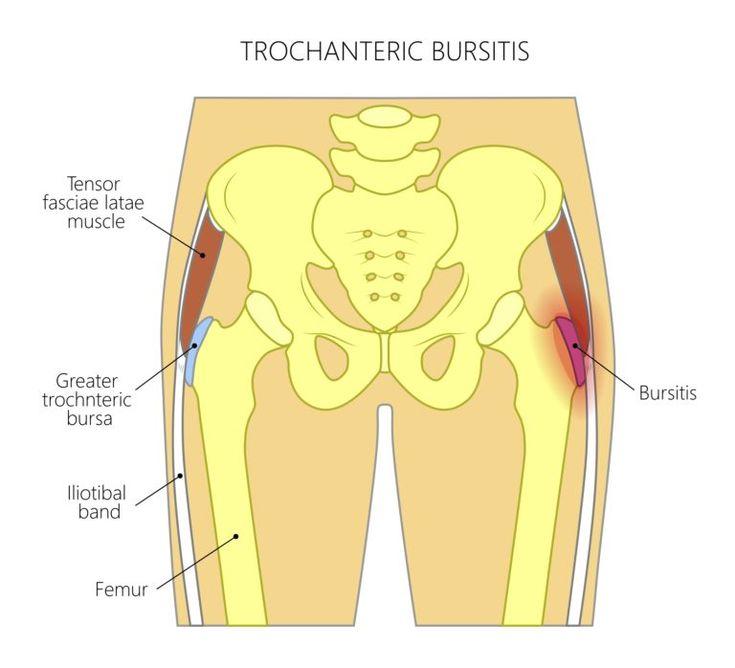 9 Best Exercises For Hip Bursitis – Taminy Jane