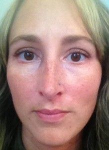 how to get rid of perioral dermatitis