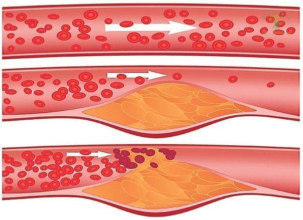 10 ПРОДУКТОВ, КОТОРЫЕ ПОМОГУТ СОХРАНИТЬ СОСУДЫ ЗДОРОВЫМИ  1. Авокадо Ученые из Мексики обнаружили, что у людей, которые ежедневно в течение недели едят авокадо, в среднем на 17% снижается уровень плохого холестерина крови снижается. Кусочки авокадо можно нарезать слайсами и класть на бутерброд или же нарезать кубиками и добавлять в салаты.  2. Цельнозерновые продукты Клетчатка, которая содержится в целом зерне (цельнозерновой хлеб, неочищенный рис, овсяная и гречневая крупы), выводит лишний…