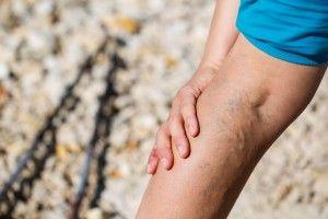 Miniflebektomia (szydełkowanie żył) - operacyjne leczenie żylaków kończyn dolnych. Żylaki to zmora większośći społeczeństwa - jak sobie z nim poradzić? #zylaki #miniflebektomia #szydelkowaniezyl #zyly #nogi