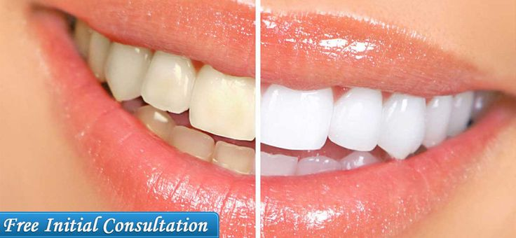 Find the best dental care in Auckland, New Zealand at Guardian Dental Care. We provide teeth whitening service at affordable price. For more Details call us at (09)-2622240.