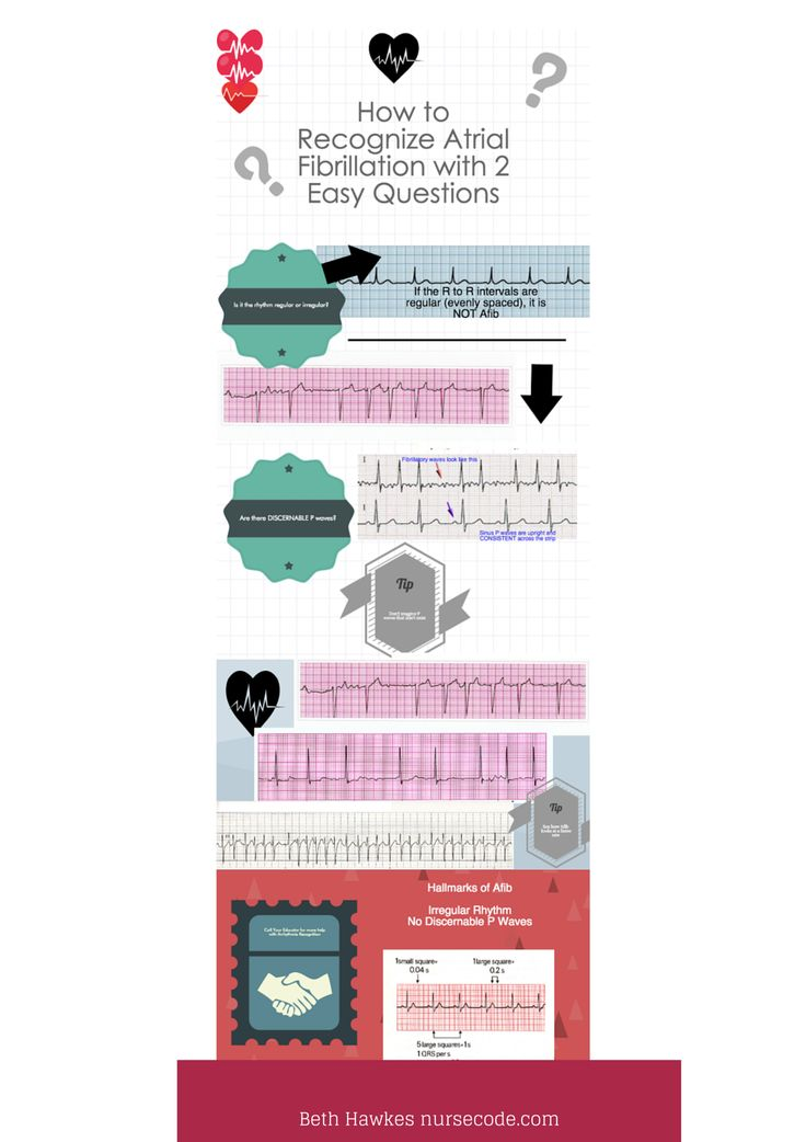 Identify Atrial Fib with 2 Easy Questions