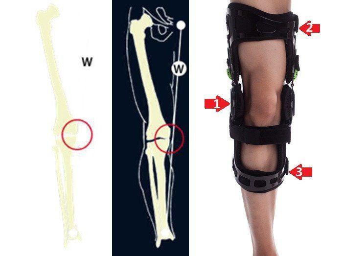f82a3a9124 What causes OA? How does a knee brace help? - Valgus / Varus | health care  | Acl knee brace, Knee pain, Knee brace