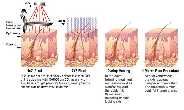 What You Need To Know Before Going For CO2 Laser Resurfacing? And What To Expect?