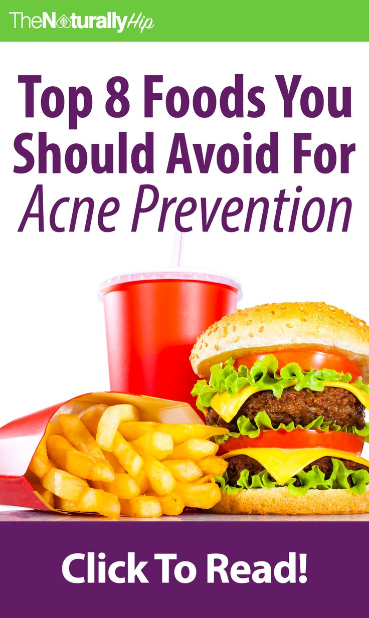 Top 8 Foods to Avoid for Acne Prevention | Some of the your favorite foods could be causing your acne...