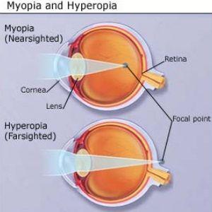 nearsightedness and farsightedness                                                                                                                                                                                 More