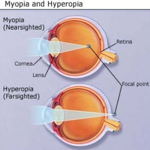 nearsightedness and farsightedness                                                                                                                                                                                 More