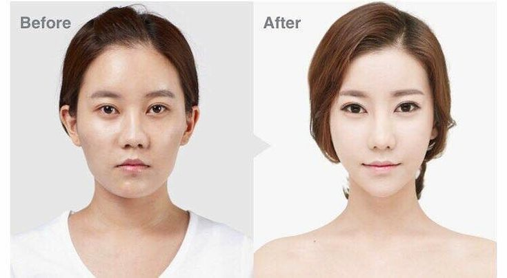 """[Before & After] TL Trinity(facial contouring, eyes, nose)��������. . ��June Promotions�� . 1️⃣��Triple Vline�� Long curved Jaw reduction & chin surgery combined with """"MBC"""" . ✔️M (masseter muscle reduction) ✔️B (bone reduction) ✔️C (cortical osteotomy) . 2️⃣��Secret Facial Contouring�� Zygoma reduction & mini vline (chin reduction) with dissolvable screws : . Airport check ����xray ����mri���� Hubbies and boyfriends will never know���� . 3️⃣��Shading Rhinoplasty�� Perfect solution for…"""