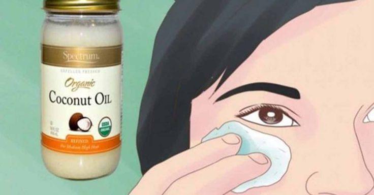 Jeśli chodzi o zdrowie i urodę, olej kokosowy jest jednym z najbardziej skutecznych i naturalnych składników do wykorzystania...