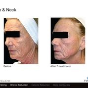 Face Before and After Venus Freeze treatments.