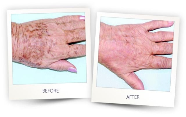 Photorejuvenation by #Dyevl #Almalaser is a non invasive treatment and one of the most effective ways to get rid of #agespots #sundamage #freckles #wrinkles #brokencapillaries #disoloration. Call today 647-345-9376 to receive 25% OFF on all skin care services.   #Spring2017 # Toronto #Canada #Cosmetic #Clearlift #laserhairremoval #fillers #botox #skincare #Spring # Almalaser #acne #treatments.