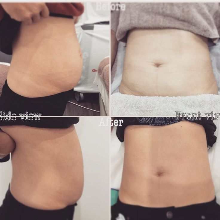 Enjoy Spring with a new body!  3 sessions of Abdomen treatment. Amazing result.  #amazing #smile #style #love #laserclinic  #firming #sexy #beauty #lookinggood #beautiful #awesome