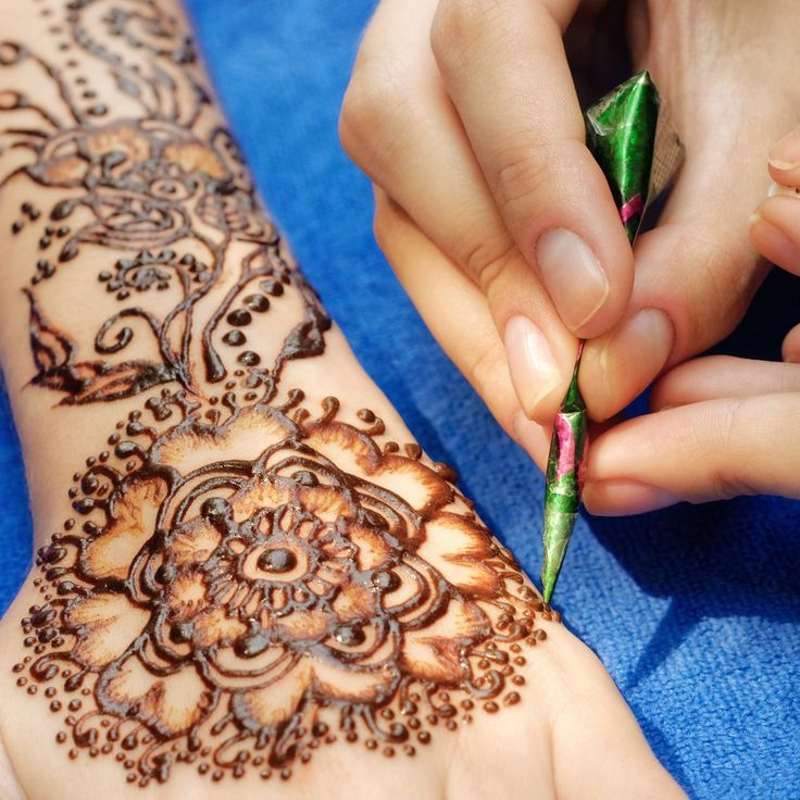 Isle Of Wight Girl Suffers Severe 'Henna Tattoo' Burns On Holiday - Isle of Wight Radio #757Live