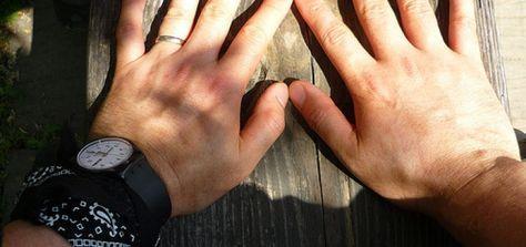 Sie haben Gicht? Hausmittel gegen Gicht helfen gegen Schmerzen und Gichtanfälle. Ob im Fuß, Zeh, Knie oder in den Händen, hier finden Sie die besten Mittel!