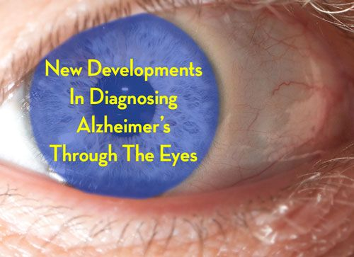 One Step Closer to A Retina Test That May Diagnose Alzheimer's #dementia #alzheimers