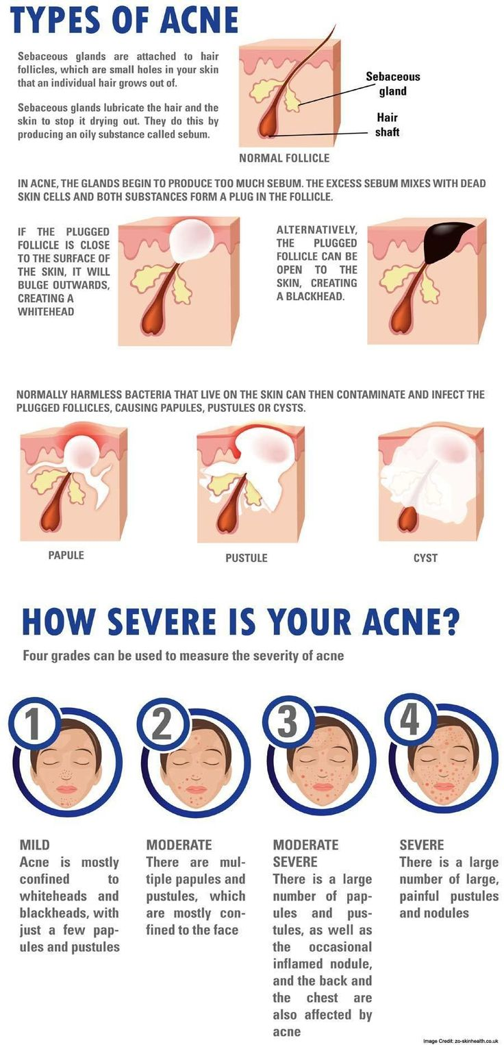 Article Body: What is Acne? Acne is a chronic disorder of the hair follicles and sebaceous glands. Some of the characteristics of acne include black heads, pimples, cysts, infected abscesses, and rarely scarring. Acne usually occurs during adolescence in both men and women. To be more specific,... #typesofacne #nexcareacneabsorbingcover,