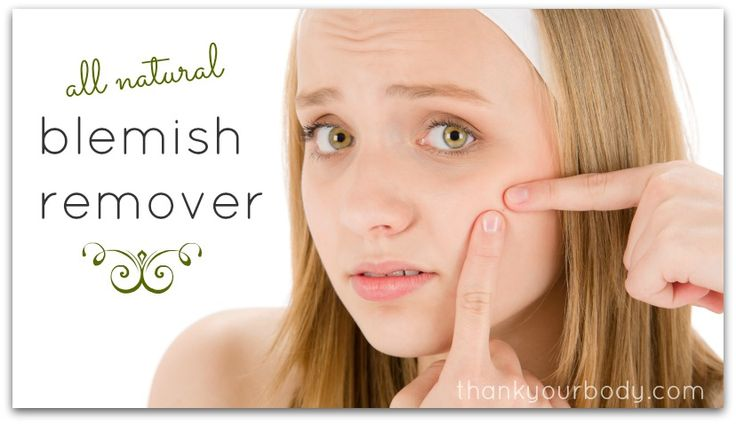 All natural blemish remover. So cool!  Follow me, share, and visit www.howtohome.biz for more free DIY tips, ideas, and solutions for both you and the home!