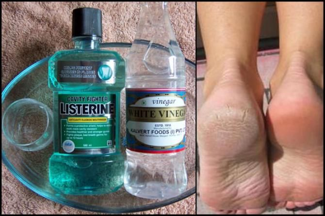 DIY fashion hack- feet exfoliation vinegar listerine: bollywoodhshaadis