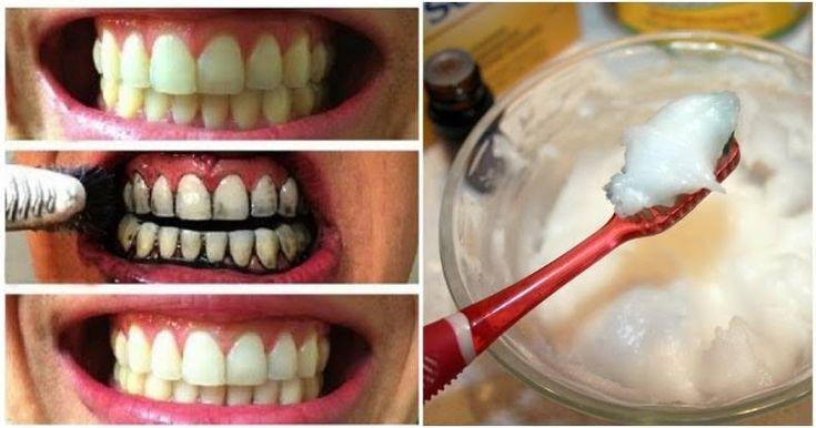 Elimina el mal aliento, sarro y la placa con esta crema dental casera blanqueadora de dientes!