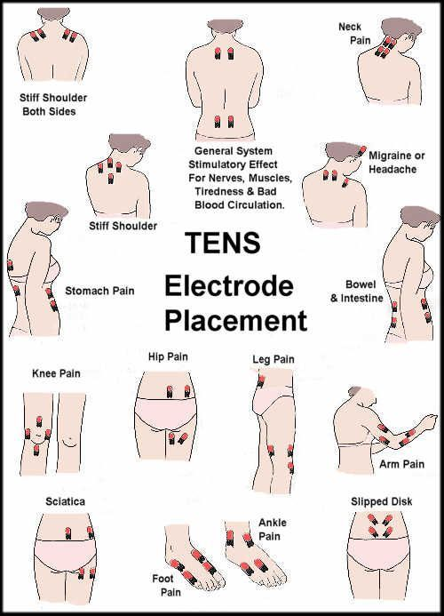 Tens Unit for All Areas of Pain. This device is used to deliver an electric current through electrodes that are placed on the skin. I have one of these but didn't know it could be used on so many places. I've just put it on my back and shoulder...need to experiment.