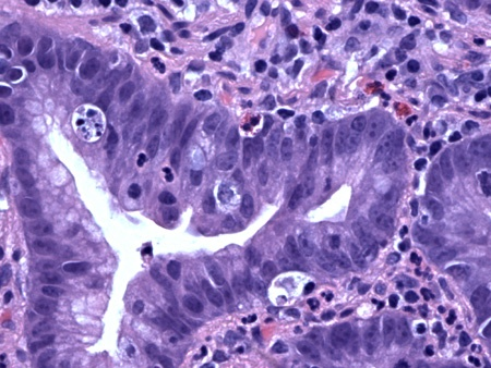 Colchicine toxicity, looks like GVHDPathology Cases, Cases Conference, Surgical Pathology