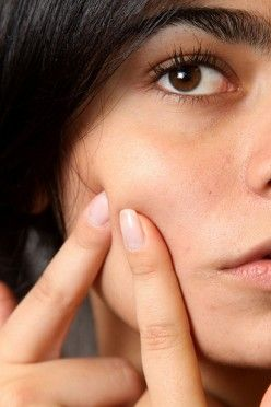 Face mapping - what's your acne telling you? Great article about how your diet may be causing breakouts and affecting your organs.