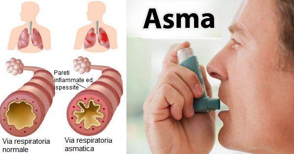 Asma. Ecco la dieta corretta e i rimedi naturali