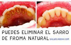 El sarro es la acumulación de sales de calcio y fósforo sobre la superficie dental. Con este método casero puedes hacer tu propia limpieza dental sin tener que acudir a un dentista.