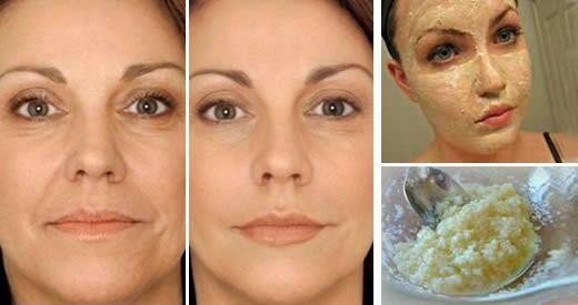 La persona il quadro per Botox